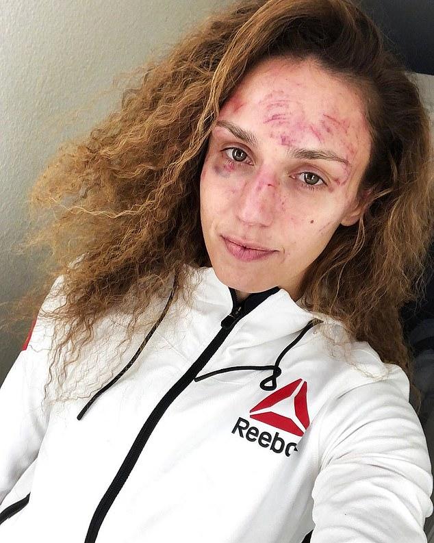 Xót xa trước gương mặt chằng chịt vết thương ngang dọc của nữ võ sĩ xinh đẹp sau khi phải nhận 200 cú đấm từ phía đối thủ - Ảnh 1.