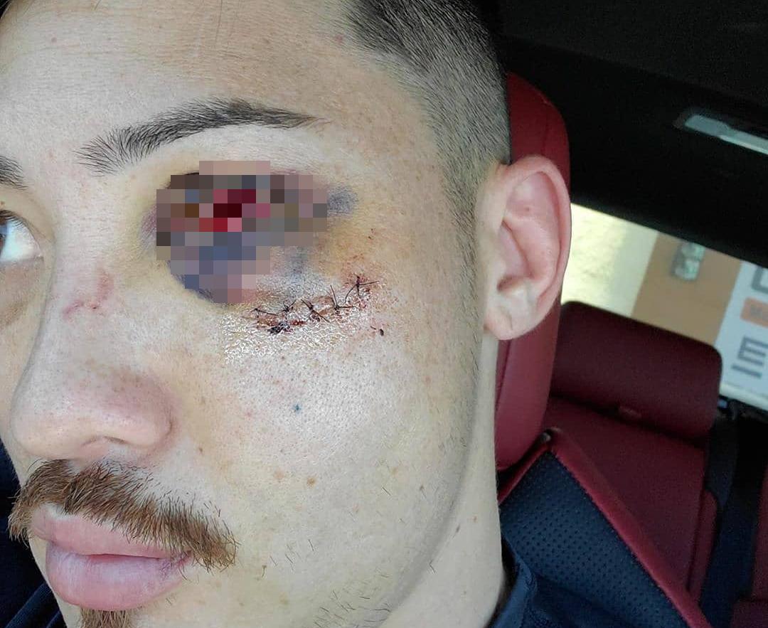 Nhận phải đòn chơi xấu của đối thủ, anh chàng võ sĩ bị vỡ xương gò má, mắt thì đỏ ngầu như ma cà rồng - Ảnh 3.