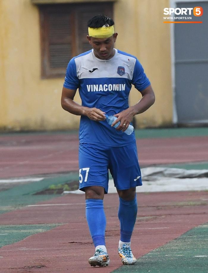Giao hữu Hà Nội FC - Than Quảng Ninh: Cầu thủ khách rách đầu, phải đi cấp cứu vì choáng sau pha va chạm cực mạnh - Ảnh 3.