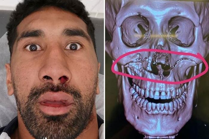 Húc mặt vào người đối phương, cầu thủ gặp chấn thương kinh hoàng, nứt đôi cả xương sọ - Ảnh 2.