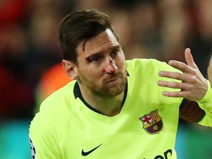 Messi chảy máu đầm đìa sau khi bị trung vệ MU gạt tay trúng mặt - Ảnh 3.