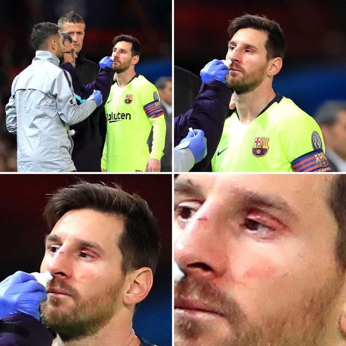 Messi chảy máu đầm đìa sau khi bị trung vệ MU gạt tay trúng mặt - Ảnh 4.