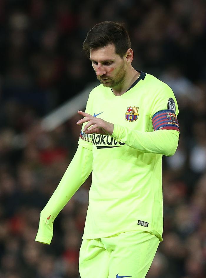 Messi chảy máu đầm đìa sau khi bị trung vệ MU gạt tay trúng mặt - Ảnh 5.