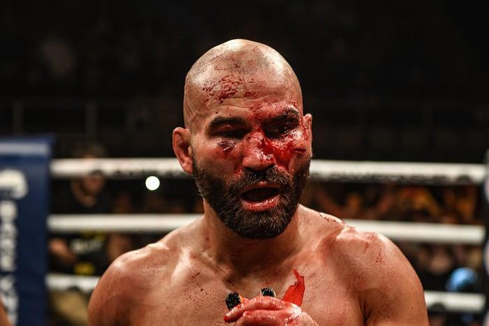 Bạn thân của Conor McGregor bị đánh rách mặt trong lần đầu thi đấu quyền Anh tay trần - Ảnh 7.