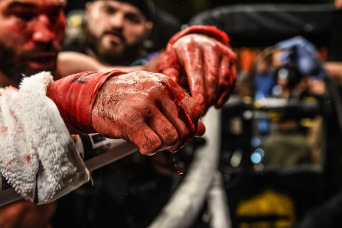 Bạn thân của Conor McGregor bị đánh rách mặt trong lần đầu thi đấu quyền Anh tay trần - Ảnh 8.