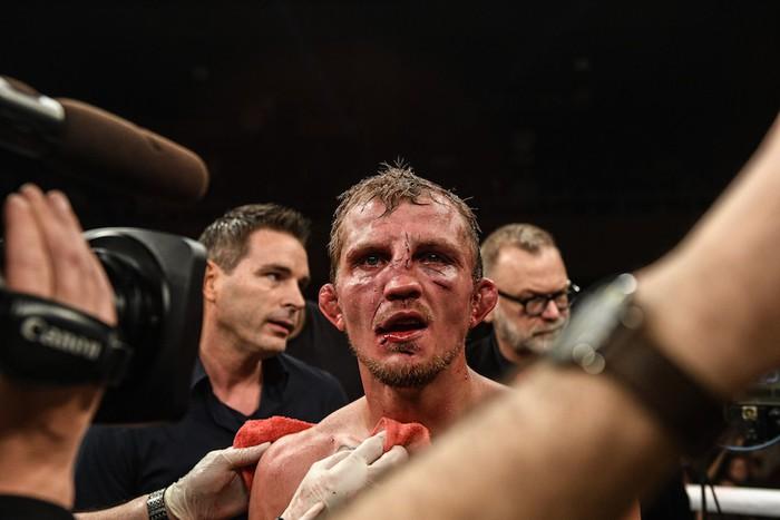 Bạn thân của Conor McGregor bị đánh rách mặt trong lần đầu thi đấu quyền Anh tay trần - Ảnh 9.
