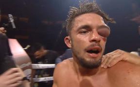 Mắt võ sĩ sưng to như quả bóng, trọng tài hốt hoảng cho dừng trận đấu