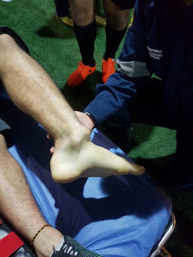 VIDEO: Đồng đội của James Rodriguez gặp phải chấn thương kinh hoàng ở cổ chân - Ảnh 2.
