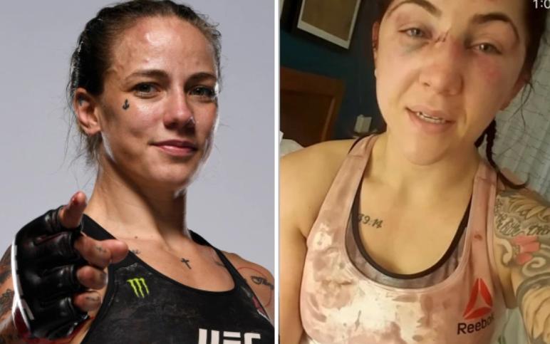 Nữ võ sĩ bị đánh tơi tả chỉ 3 tuần trước lễ cưới, đối thủ hối hận: Tôi xin lỗi
