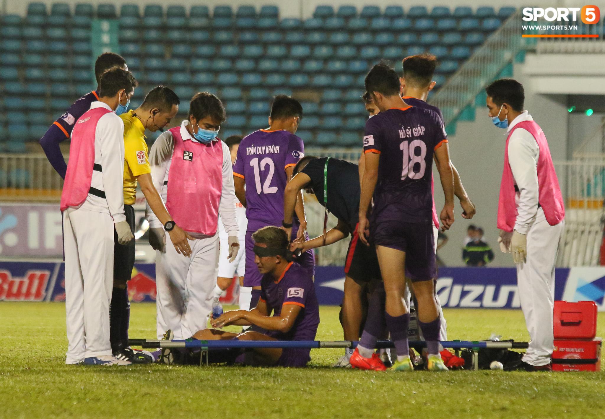 Cầu thủ Bình Dương chảy máu vẫn tiếp tục thi đấu, CLB HAGL bị tố chơi không fair-play - ảnh 4