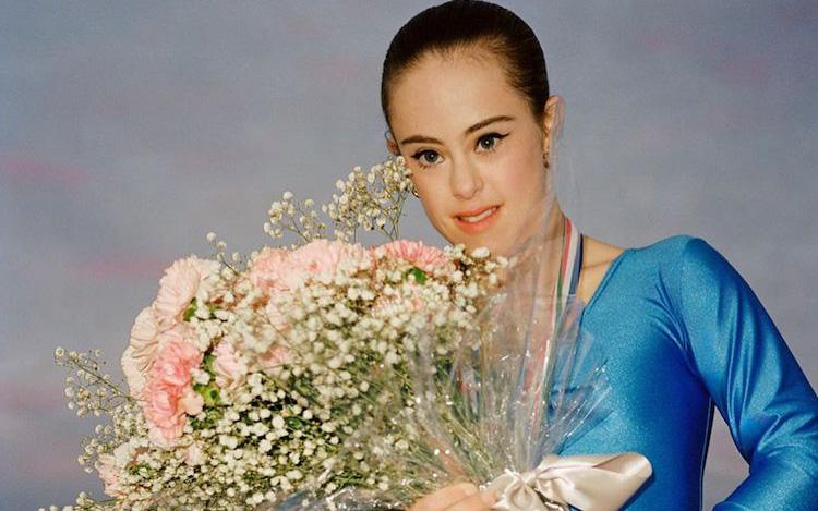 Mắc hội chứng Down, cô gái vẫn làm người mẫu ảnh và giành chức vô địch thế giới thể dục dụng cụ