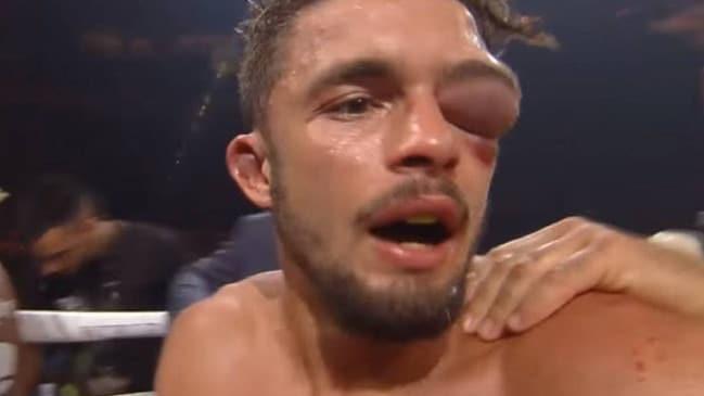 Mắt võ sĩ sưng to như quả bóng, trọng tài hốt hoảng cho dừng trận đấu - Ảnh 1.