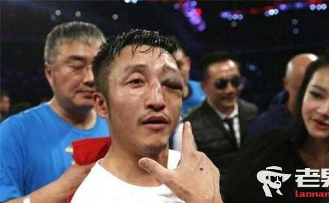 Mắt võ sĩ sưng to như quả bóng, trọng tài hốt hoảng cho dừng trận đấu - Ảnh 2.