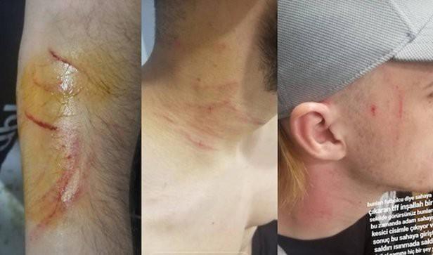 Cầu thủ bị cấm thi đấu suốt đời sau khi mang dao cạo tấn công đối thủ ngay trên sân - Ảnh 2.