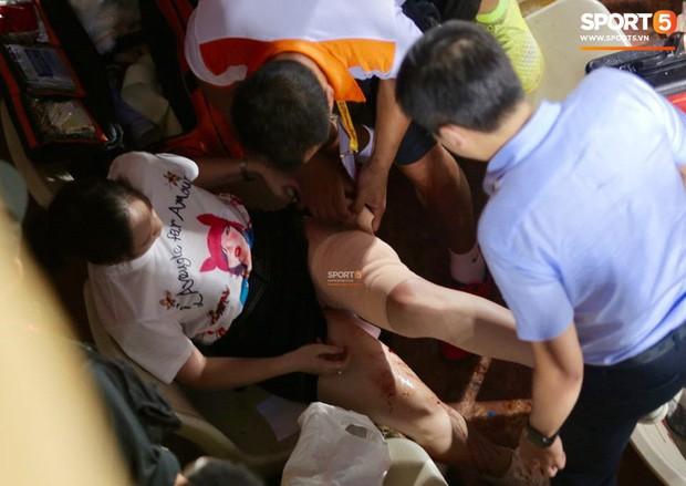 Báo Thái bức xúc, chê giải VĐQG của Việt Nam ghê rợn sau vụ fan nữ bị bỏng nặng do pháo sáng - Ảnh 2.