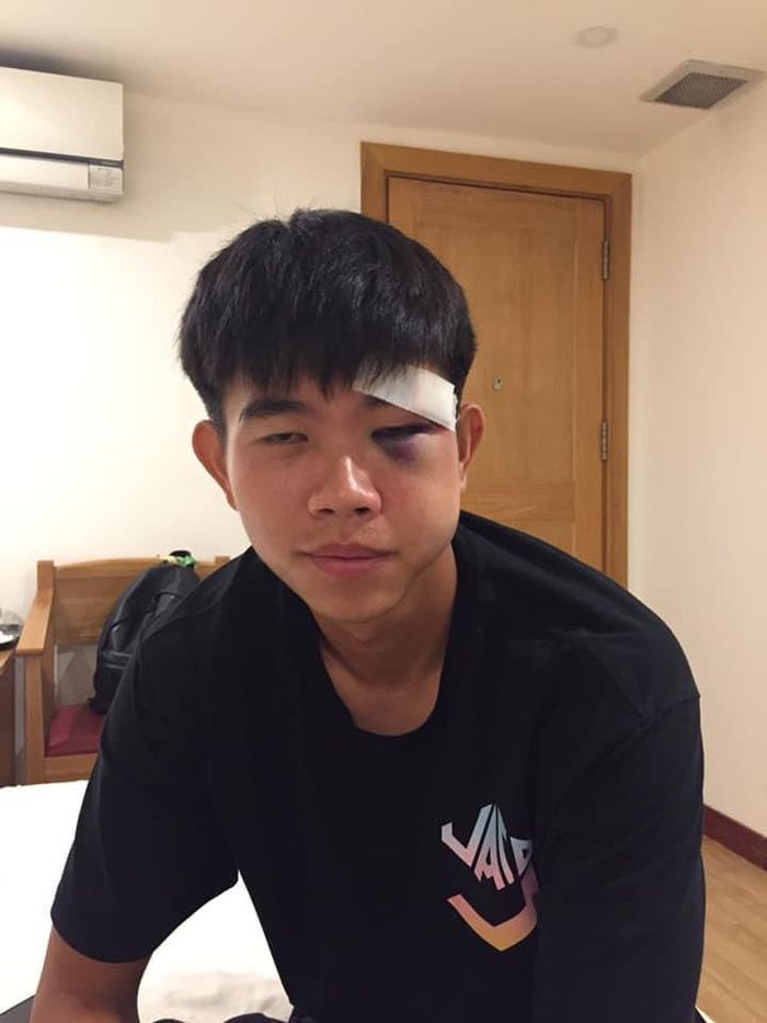 Chú họ của Văn Toàn má sưng vù, mắt tím bầm sau pha va chạm ở giải hạng nhất - Ảnh 4.