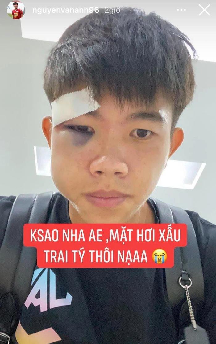 Chú họ của Văn Toàn má sưng vù, mắt tím bầm sau pha va chạm ở giải hạng nhất - Ảnh 1.