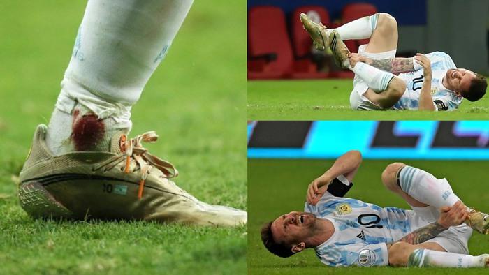 Chung kết Copa America 2021: Cái kết đẹp cho Lionel Messi? - Ảnh 3.