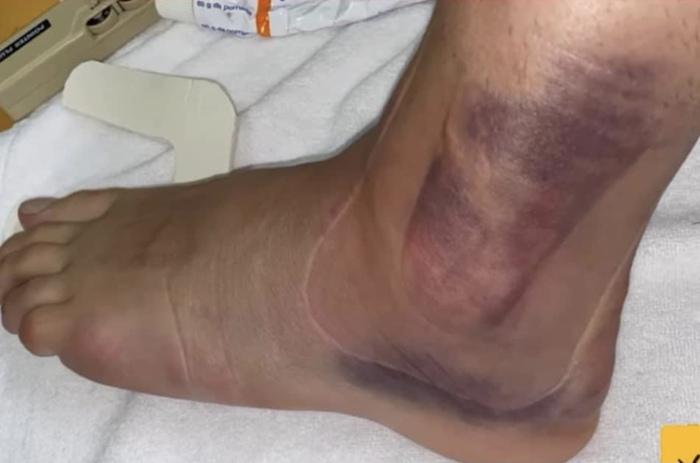 1 ngày sau chấn thương kinh hoàng của Ceballos: Cổ chân bầm tím, sưng tấy gây sợ hãi - Ảnh 2.