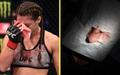 Nữ võ sĩ gặp chấn thương kinh hoàng sau cú đòn của đối thủ, fan tiếc nuối cho nhan sắc xinh đẹp của cô nàng