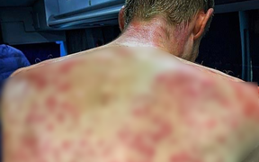 """Rợn người với chấn thương """"trên trời rơi xuống"""" của VĐV đua xe đạp, nhìn vùng bị ảnh hưởng cũng cảm nhận được cơn đau thấu xương"""