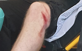 Đến muộn giờ thi đấu, fan Union Berlin bị cảnh sát sân Feyenoord thả chó nghiệp vụ cắn nhập viện