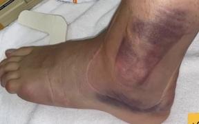 1 ngày sau chấn thương kinh hoàng của Ceballos: Cổ chân bầm tím, sưng tấy gây sợ hãi