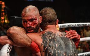 Bạn thân của Conor McGregor bị đánh rách mặt trong lần đầu thi đấu quyền Anh tay trần