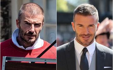 Beckham và những ngôi sao bóng đá tút lại vẻ đẹp trai nhờ phương pháp cấy tóc