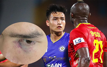 Cầu thủ trẻ xuất sắc nhất V.League tím mắt sau trận Hà Nội FC đấu Thanh Hóa FC