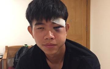 Chú họ của Văn Toàn má sưng vù, mắt tím bầm sau pha va chạm ở giải hạng nhất