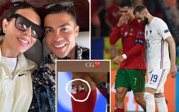Ronaldo sử dụng bảo hộ ống đồng có in hình bạn gái