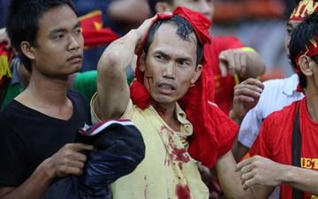 Đêm kinh hoàng: CĐV Malaysia đánh CĐV Việt Nam đổ máu ở AFF Cup 2014