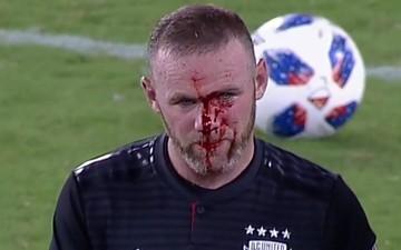 Huyền thoại MU đổ máu, khâu 5 mũi trong ngày xỏ kim đồng đội cũ để ghi bàn đầu tiên ở nước Mỹ