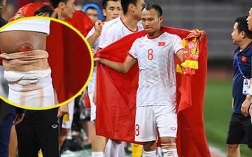 Góc chạnh lòng: Trọng Hoàng đứng một mình buồn thiu với đầu gối chảy máu khi cả đội đang ăn mừng vô địch SEA Games