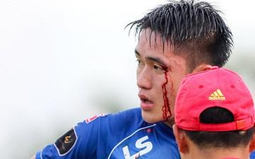 Máu đổ thành dòng trên mặt trung vệ Tấn Sinh ở vòng 23 V.League 2019